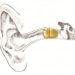 Lyric inside ear